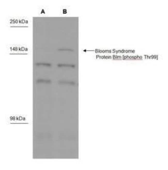 Phospho-Blooms Syndrome (Thr99) Rabbit anti-Human, Polyclonal, Invitrogen
