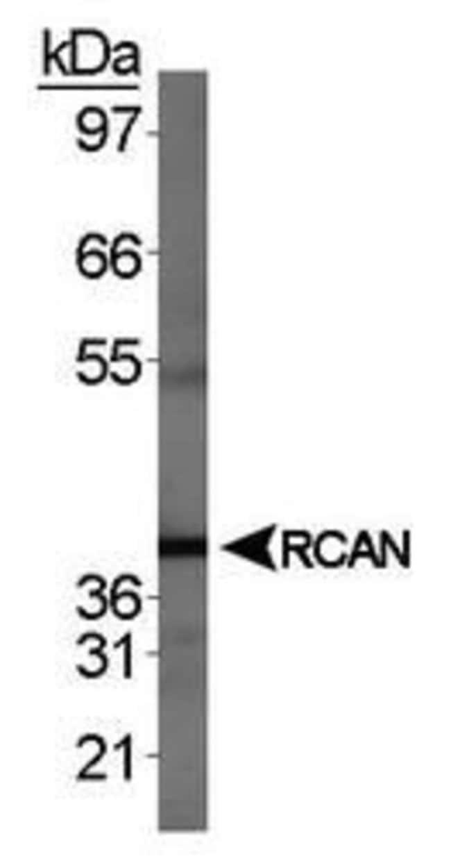 RCAN1 Rabbit anti-Human, Mouse, Polyclonal, Invitrogen 100 µL; Unconjugated