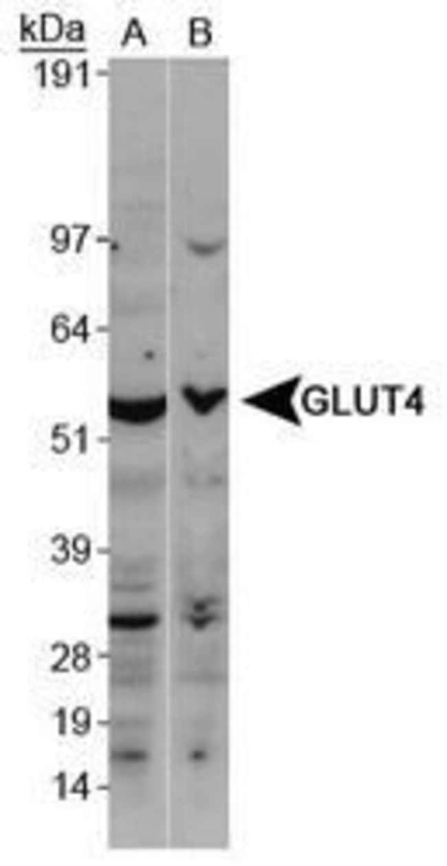 GLUT4 Rabbit anti-Human, Mouse, Rat, Polyclonal, Invitrogen 100 µL;