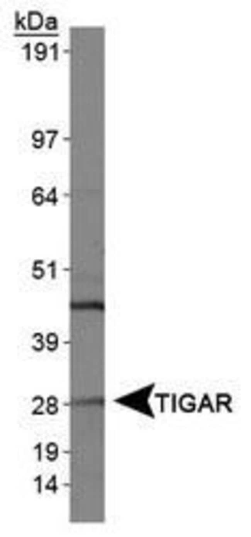 TIGAR Rabbit anti-Human, Mouse, Polyclonal, Invitrogen 100 µL; Unconjugated