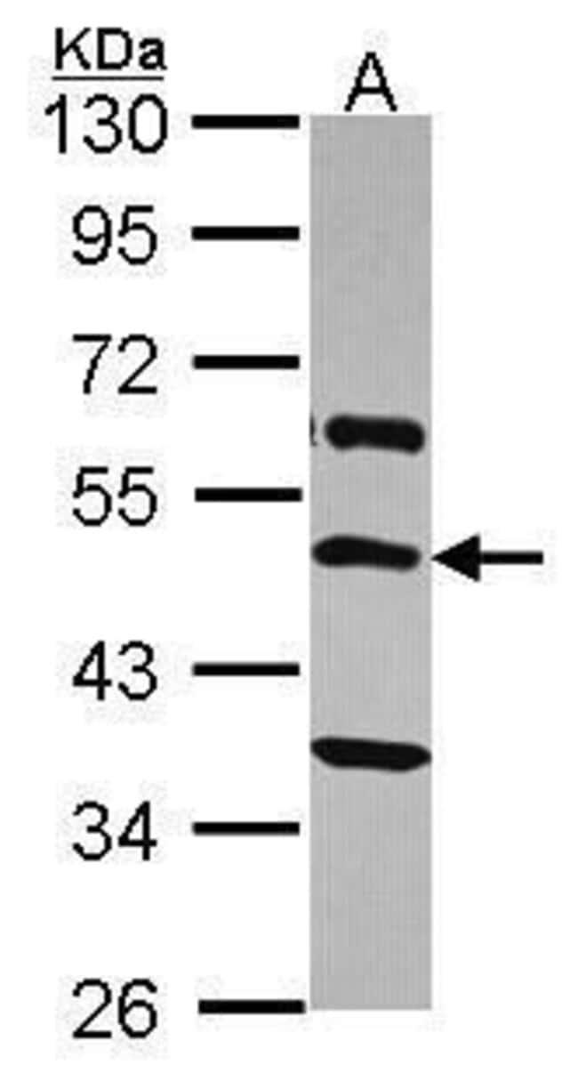 TRHR Rabbit anti-Human, Polyclonal, Invitrogen 100 µL; Unconjugated