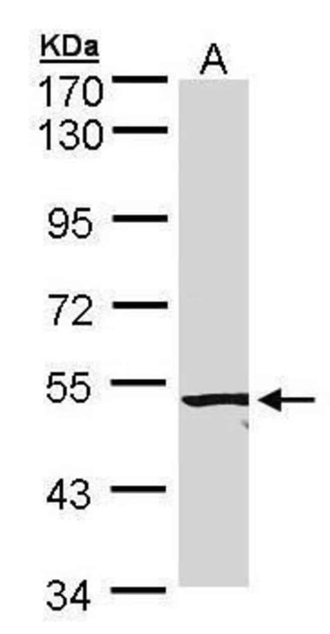ACVRL1 Rabbit anti-Human, Mouse, Polyclonal, Invitrogen 100 µL; Unconjugated