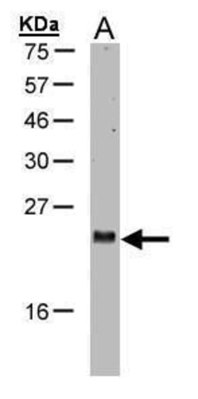 ARL2 Rabbit anti-Human, Polyclonal, Invitrogen 100 µL; Unconjugated