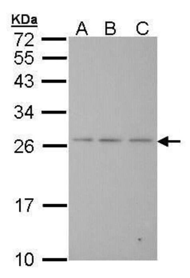 BAK Rabbit anti-Human, Polyclonal, Invitrogen 100 µL; Unconjugated