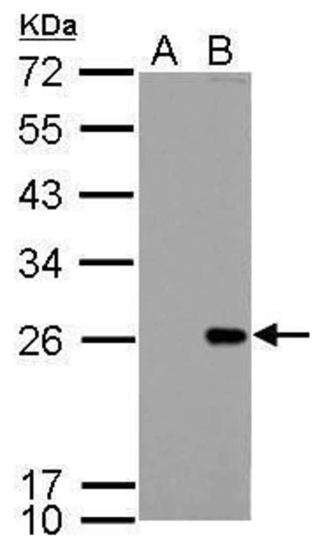 Bcl-2 Rabbit anti-Human, Rat, Polyclonal, Invitrogen 100 µL; Unconjugated