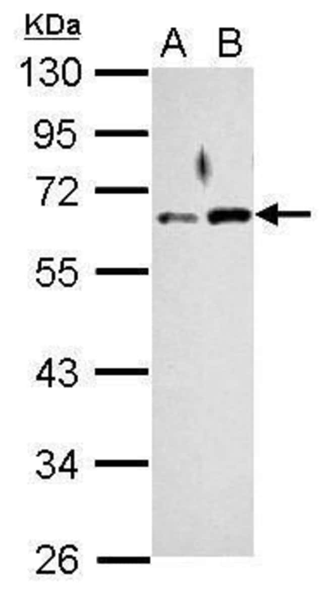 RAD9 Rabbit anti-Human, Polyclonal, Invitrogen 100 µL; Unconjugated