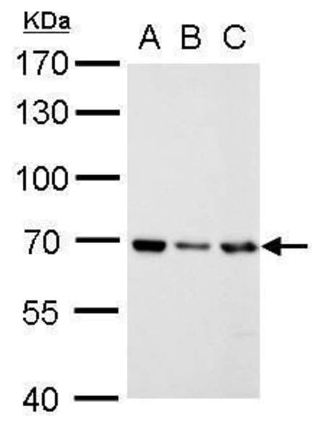 RecQ1 Rabbit anti-Human, Polyclonal, Invitrogen 100 μL; Unconjugated:Antibodies
