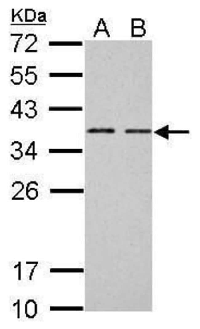 BCL7A Rabbit anti-Human, Mouse, Polyclonal, Invitrogen 100 µL; Unconjugated