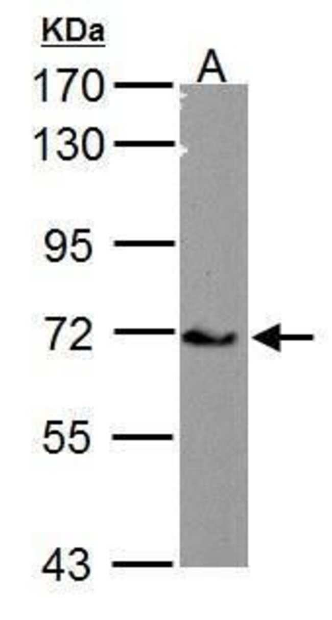 Calcium Channel beta-4 Rabbit anti-Human, Mouse, Polyclonal, Invitrogen