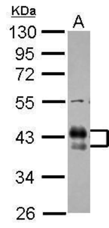 FCGR2B Rabbit anti-Human, Polyclonal, Invitrogen 100 µL; Unconjugated