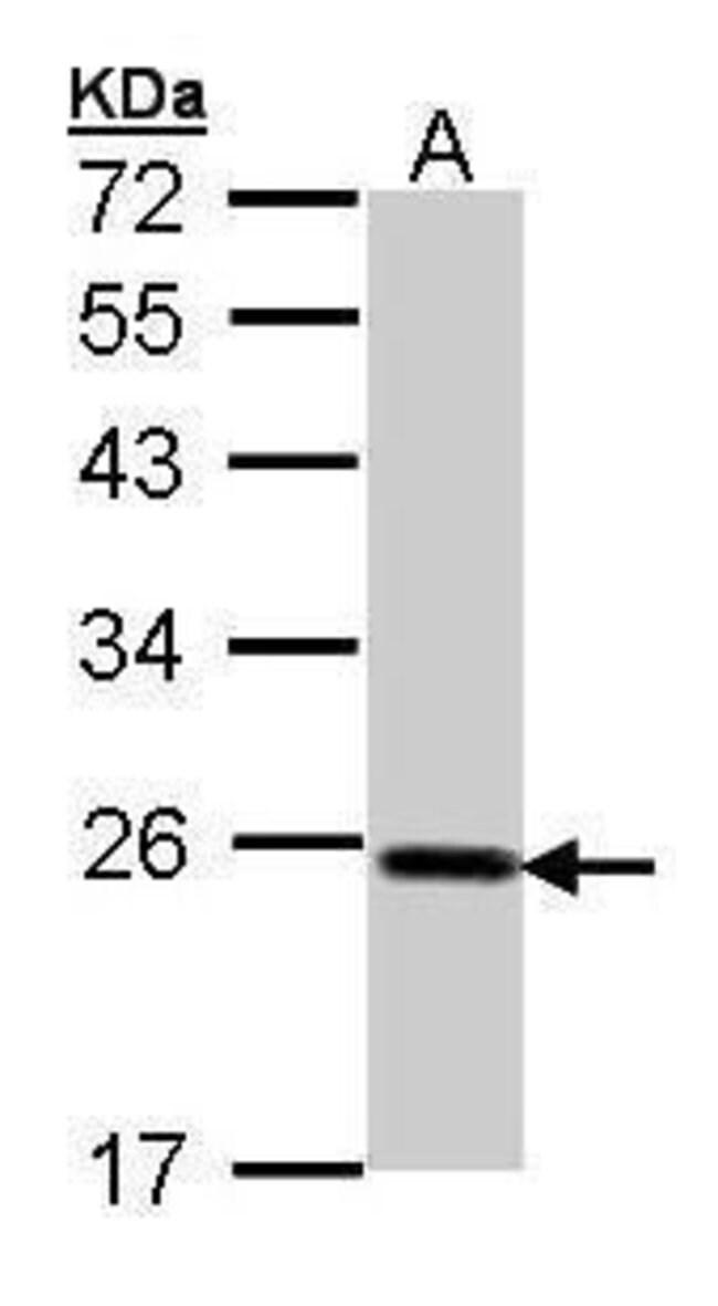 GPX2 Rabbit anti-Human, Mouse, Polyclonal, Invitrogen 100 µL; Unconjugated