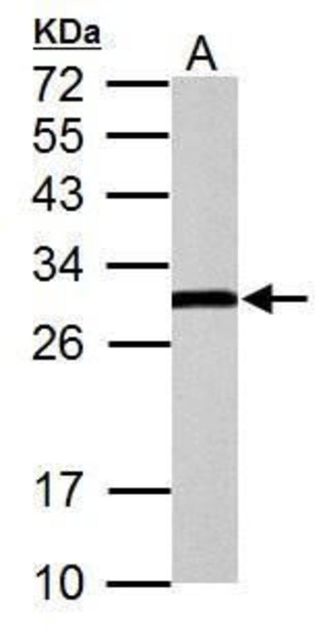 ERAB Rabbit anti-Human, Mouse, Rat, Polyclonal, Invitrogen 100 µL;