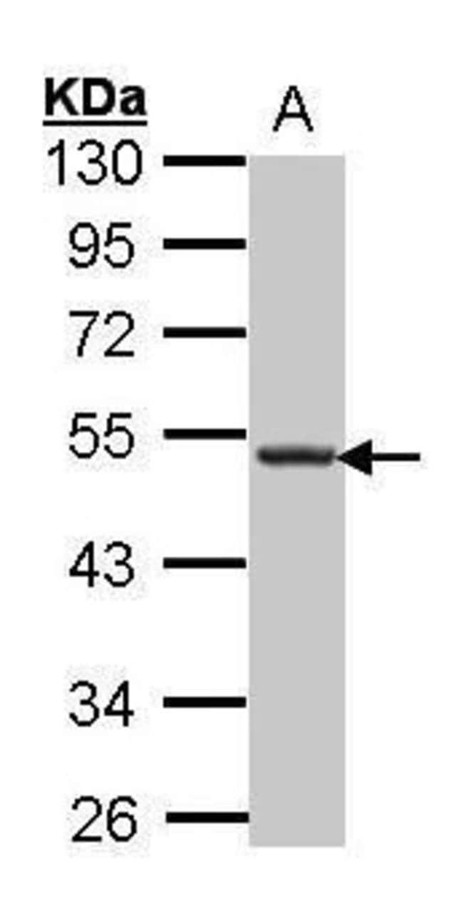 CXCR5 Rabbit anti-Human, Polyclonal, Invitrogen 100 μL; Unconjugated