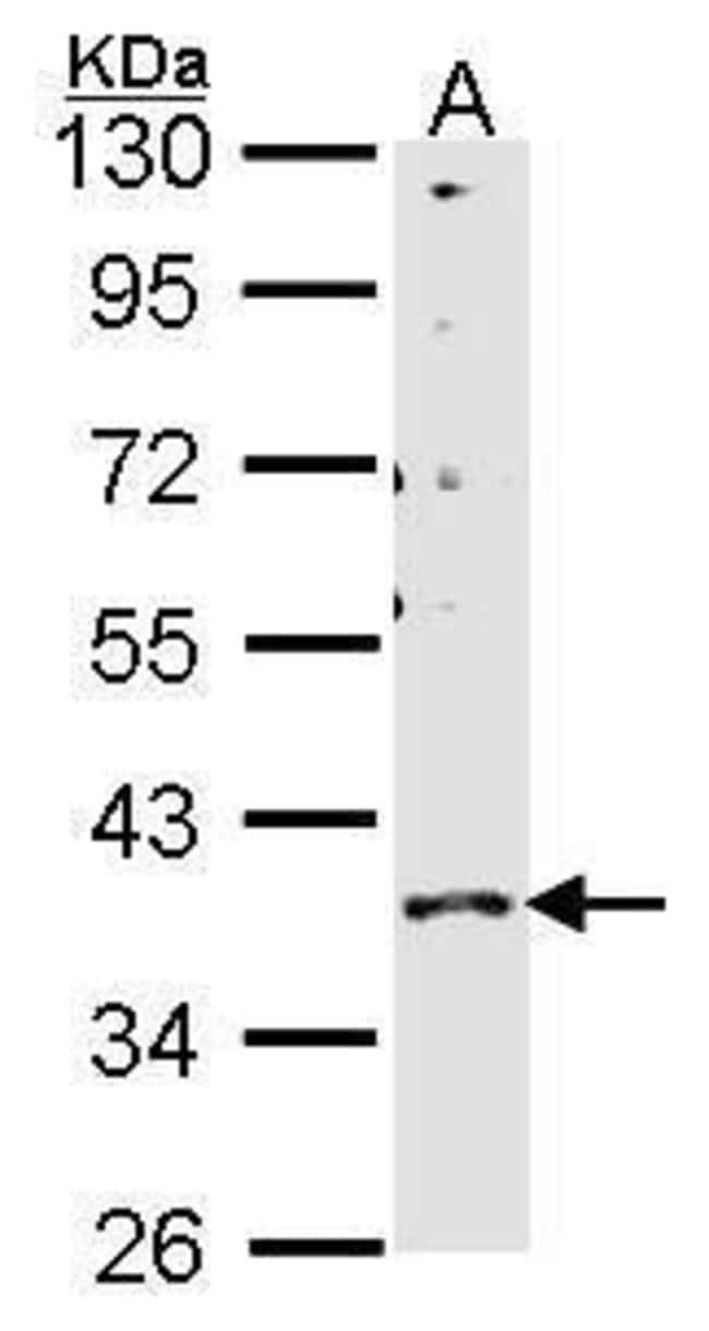 GPR146 Rabbit anti-Human, Polyclonal, Invitrogen 100 µL; Unconjugated