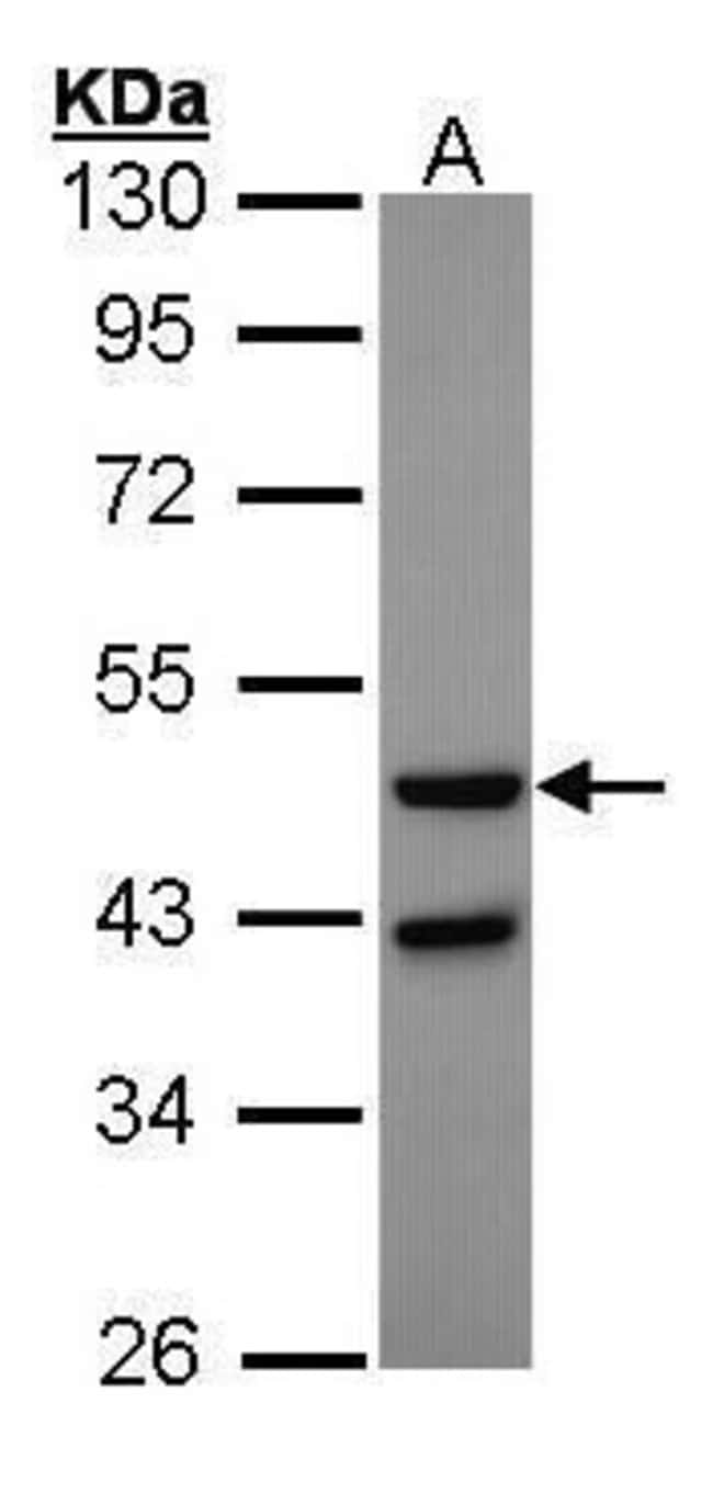 Glucagon Receptor Rabbit anti-Human, Polyclonal, Invitrogen 100 µL;
