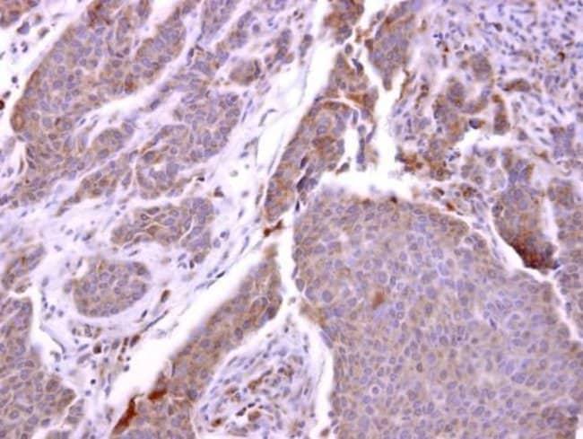 CXCR1 Rabbit anti-Human, Polyclonal, Invitrogen 100 µL; Unconjugated