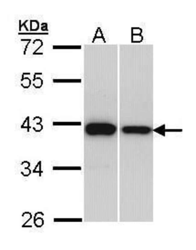 RAD51 Rabbit anti-Human, Mouse, Polyclonal, Invitrogen 100 µL; Unconjugated