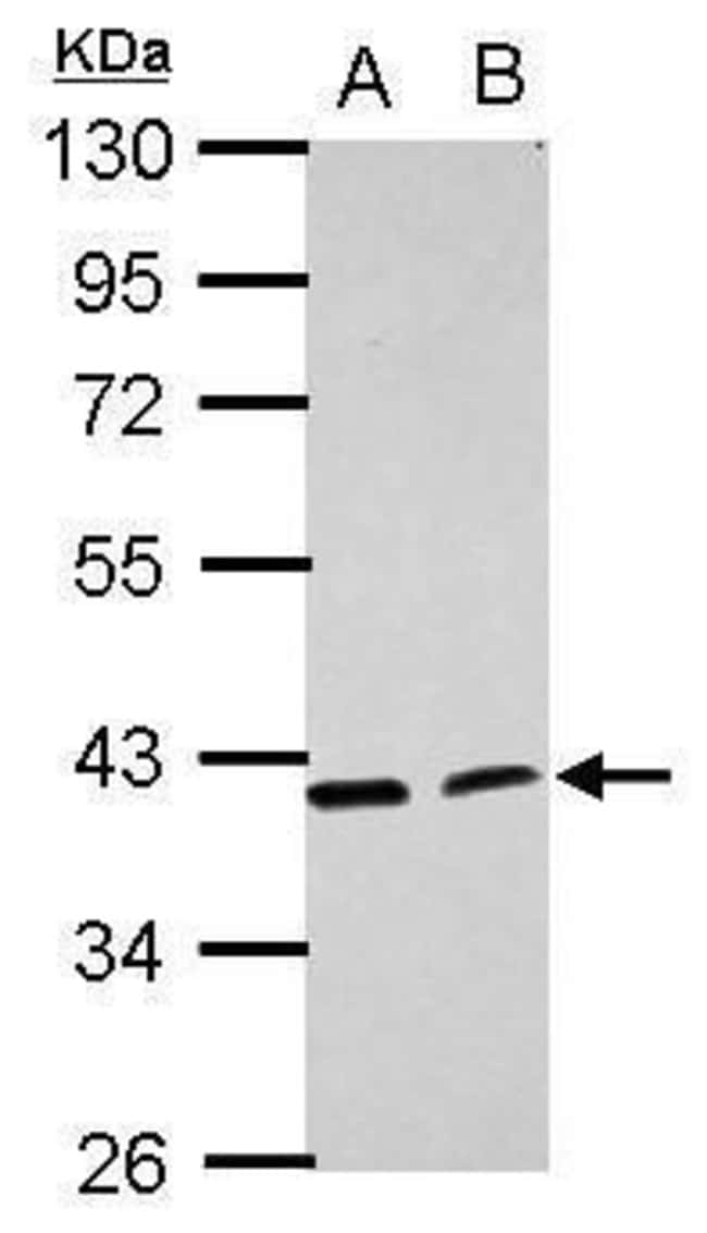 ACADL Rabbit anti-Human, Polyclonal, Invitrogen 100 µL; Unconjugated