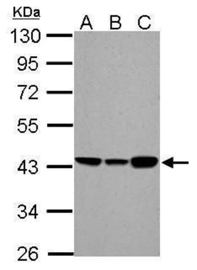 ACADM Rabbit anti-Human, Mouse, Rat, Polyclonal, Invitrogen 100 µL;