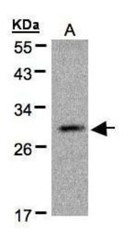 Kallikrein 2 Rabbit anti-Human, Polyclonal, Invitrogen 100 µL; Unconjugated