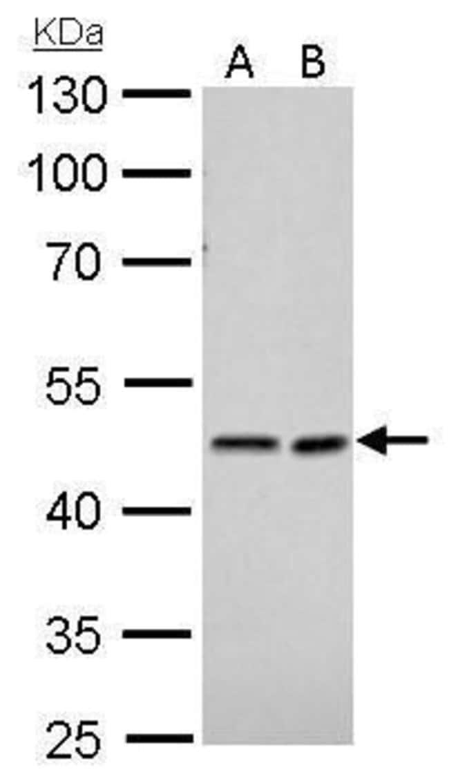 NDRG1 Rabbit anti-Human, Mouse, Polyclonal, Invitrogen 100 µL; Unconjugated