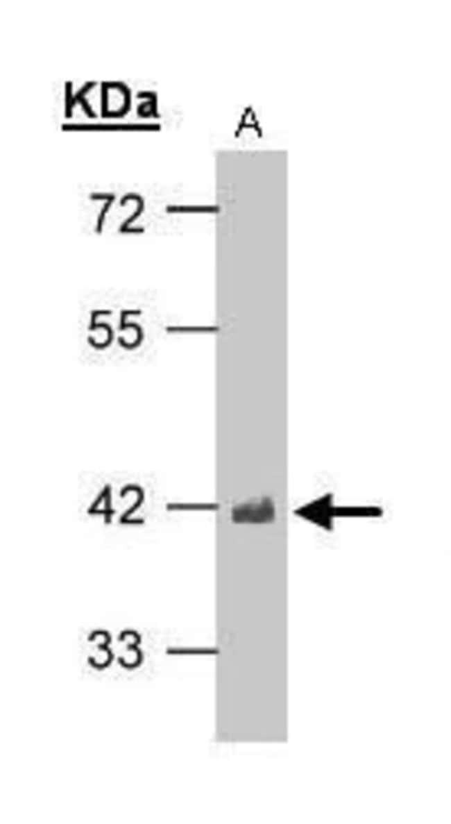 TDP-43 Rabbit anti-Human, Mouse, Rat, Polyclonal, Invitrogen 100 µL;