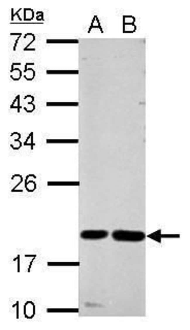 Cystatin F Rabbit anti-Human, Polyclonal, Invitrogen 100 µL; Unconjugated