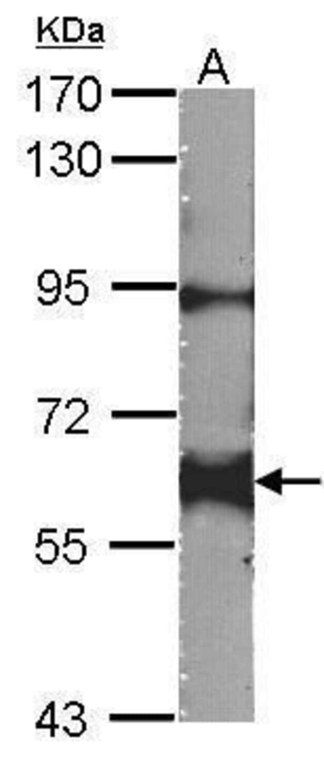 YES1 Rabbit anti-Human, Mouse, Polyclonal, Invitrogen 100 µL; Unconjugated