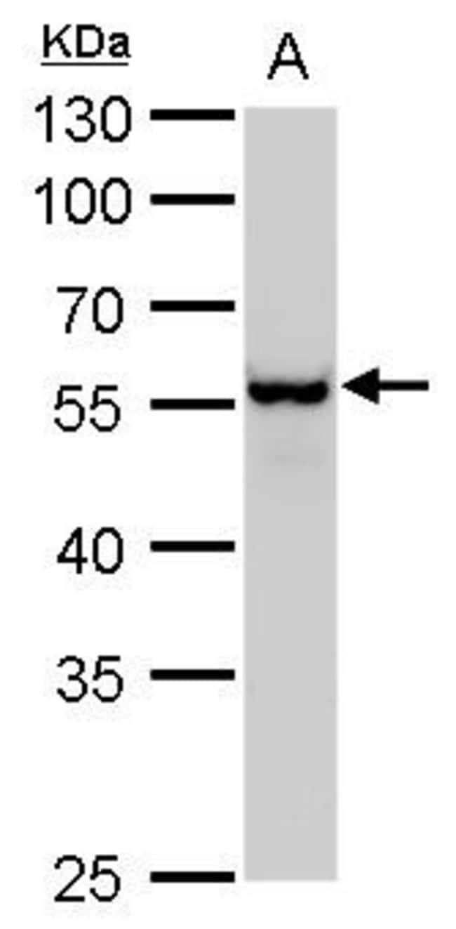 Vimentin Rabbit anti-Human, Mouse, Rat, Polyclonal, Invitrogen 100 µL;