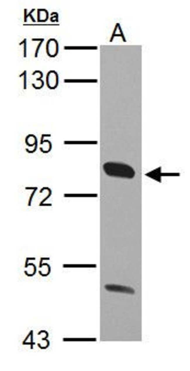 CD36 Rabbit anti-Human, Mouse, Polyclonal, Invitrogen 100 µL; Unconjugated