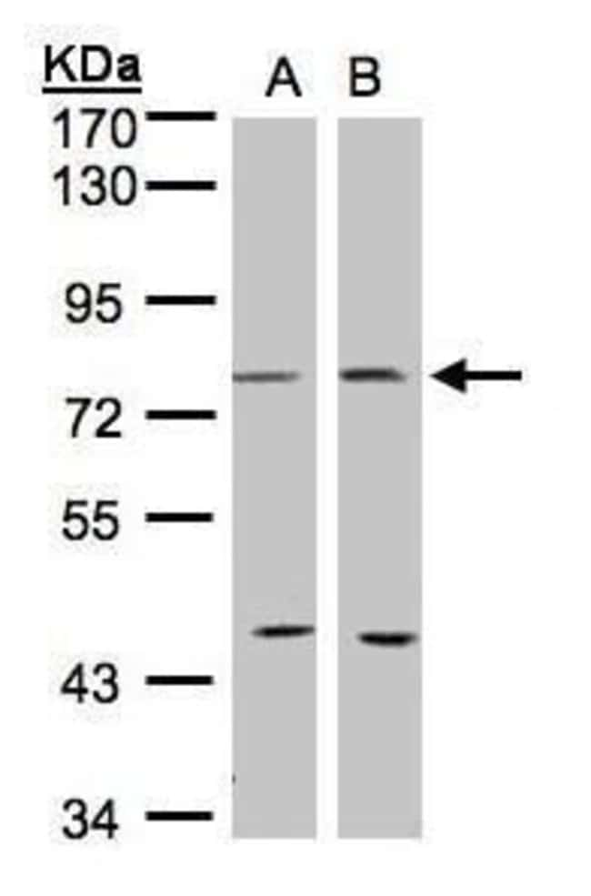COX2 Rabbit anti-Human, Mouse, Rat, Polyclonal, Invitrogen 100 µL;