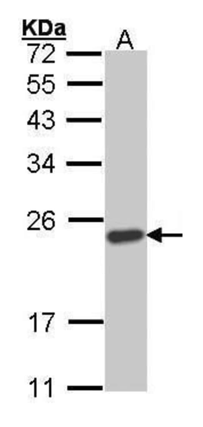 SOCS1 Rabbit anti-Human, Mouse, Polyclonal, Invitrogen 100 µL; Unconjugated