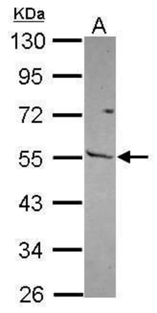 MMP13 Rabbit anti-Human, Polyclonal, Invitrogen 100 µL; Unconjugated