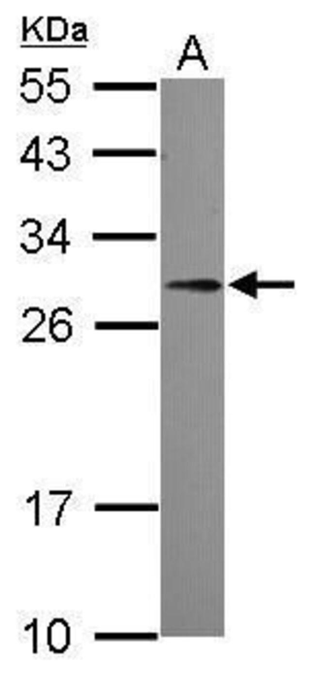 PDGF-B Rabbit anti-Human, Polyclonal, Invitrogen 100 µL; Unconjugated