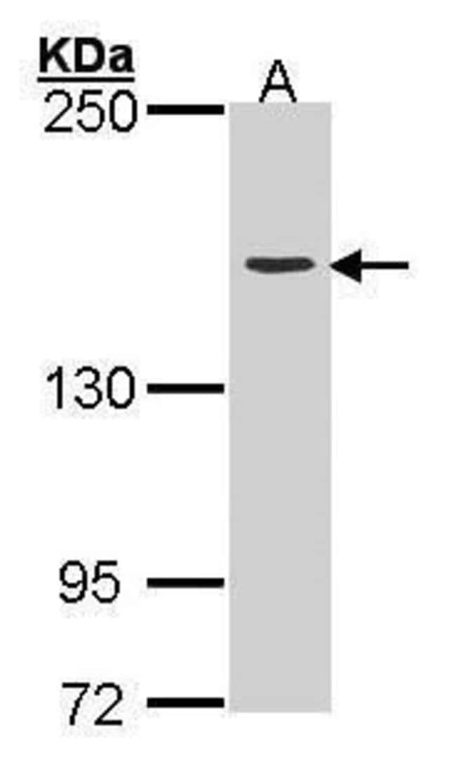 TOP2A Rabbit anti-Human, Polyclonal, Invitrogen 100 µL; Unconjugated