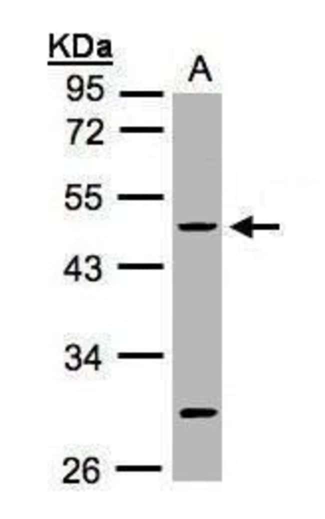 Cytokeratin 20 Rabbit anti-Human, Polyclonal, Invitrogen 100 µL; Unconjugated