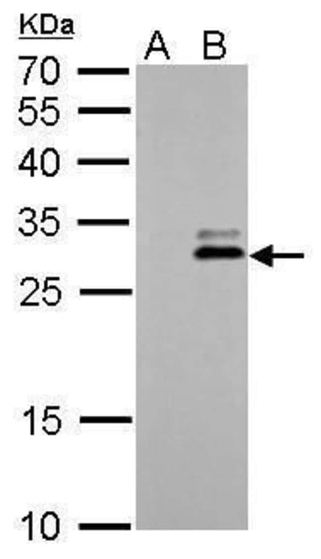 Kallikrein 7 Rabbit anti-Human, Polyclonal, Invitrogen 100 µL; Unconjugated