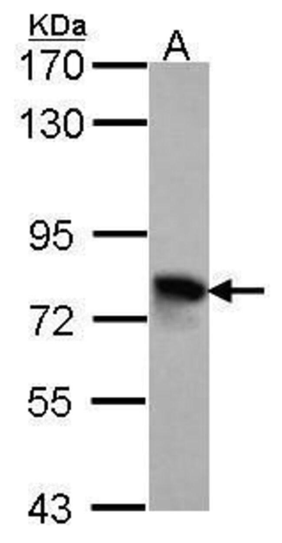 TGFBI Rabbit anti-Chicken, Human, Polyclonal, Invitrogen 100 µL; Unconjugated