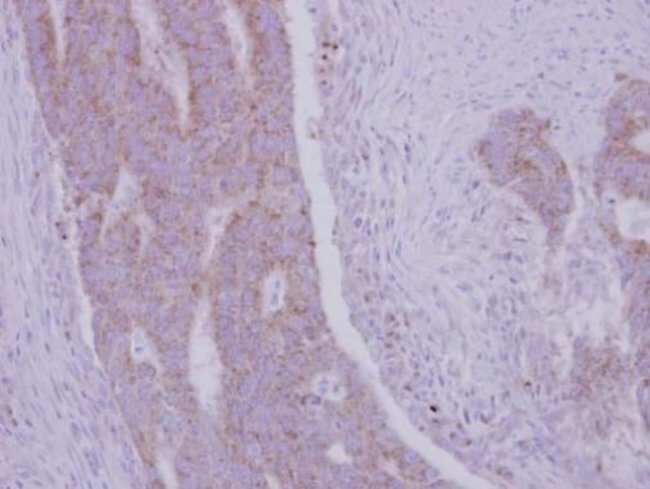 RRM1 Rabbit anti-Human, Mouse, Polyclonal, Invitrogen 100 µL; Unconjugated