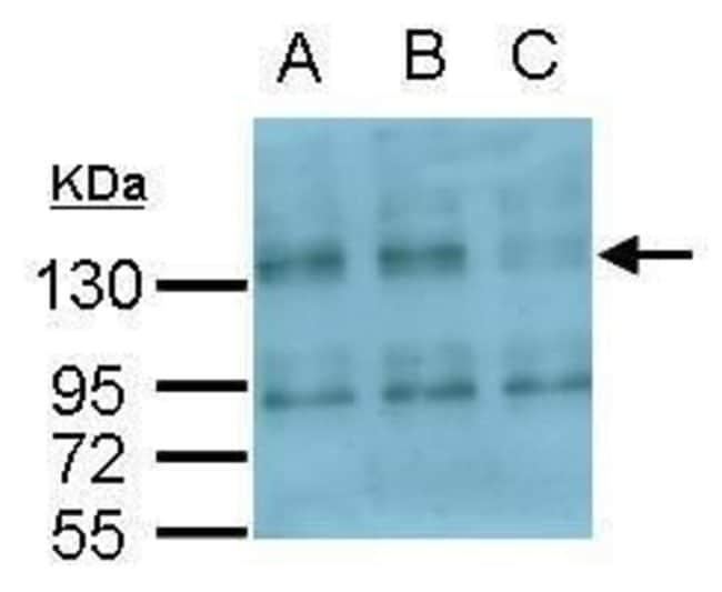 CD51 Rabbit anti-Human, Polyclonal, Invitrogen 100 µL; Unconjugated