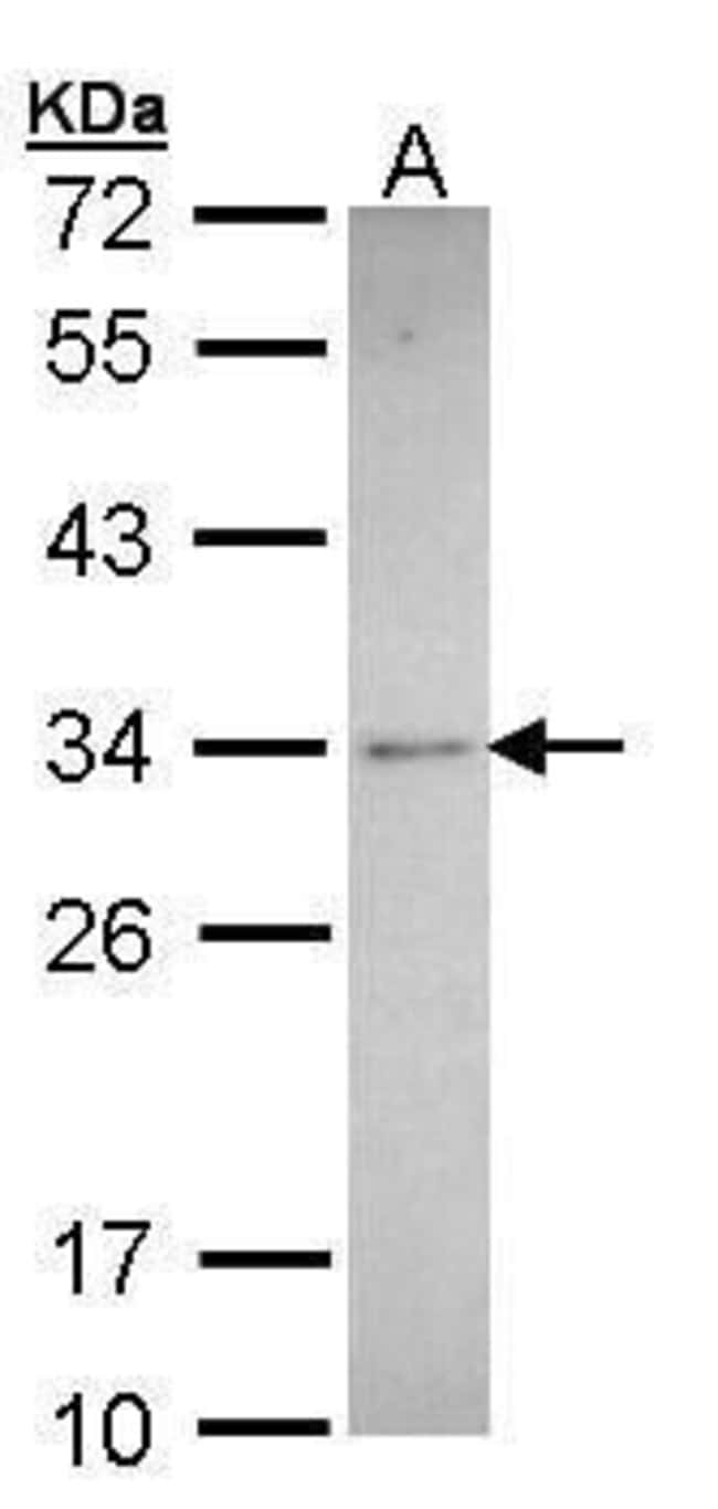 Synaptophysin Rabbit anti-Human, Mouse, Rat, Polyclonal, Invitrogen 100