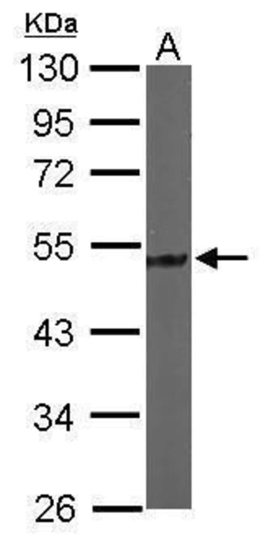 Tau Rabbit anti-Human, Mouse, Polyclonal, Invitrogen 100 µL; Unconjugated