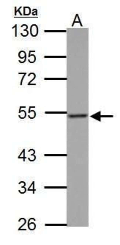 Thymidine Phosphorylase Rabbit anti-Human, Polyclonal, Invitrogen 100 µL;