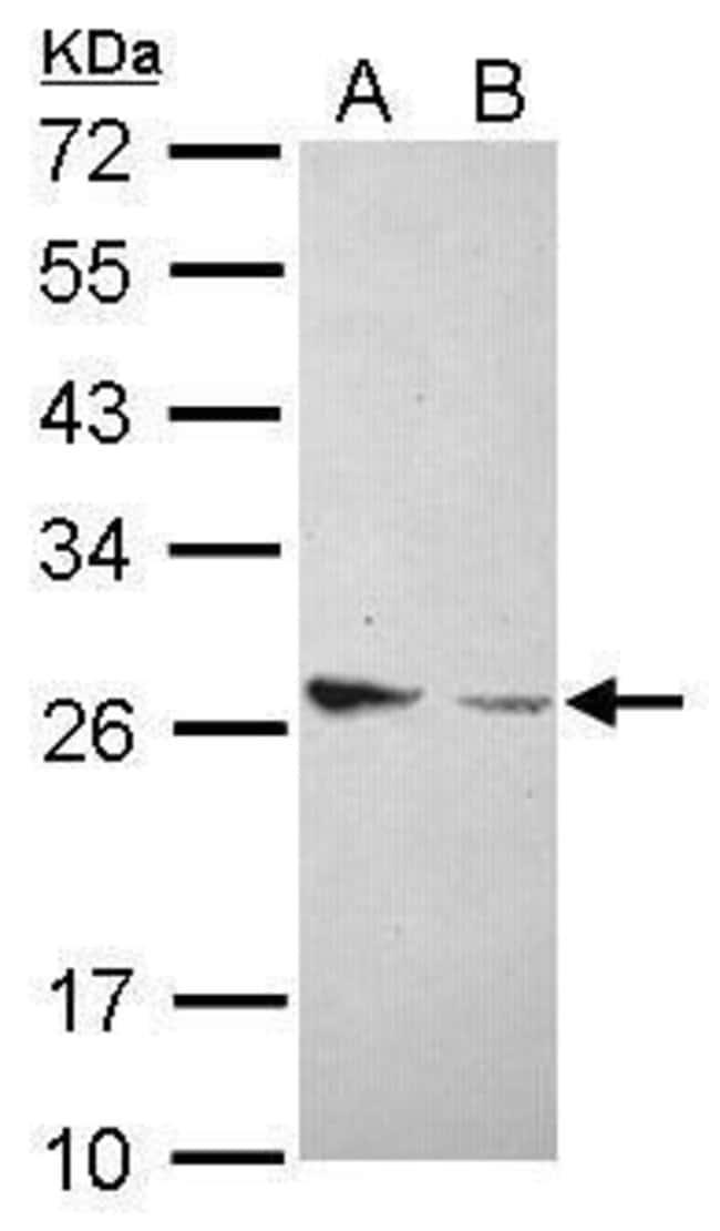 Amphiregulin Rabbit anti-Human, Polyclonal, Invitrogen 100 µL; Unconjugated