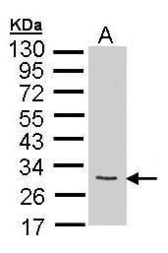 FGF10 Rabbit anti-Human, Mouse, Polyclonal, Invitrogen 100 µL; Unconjugated