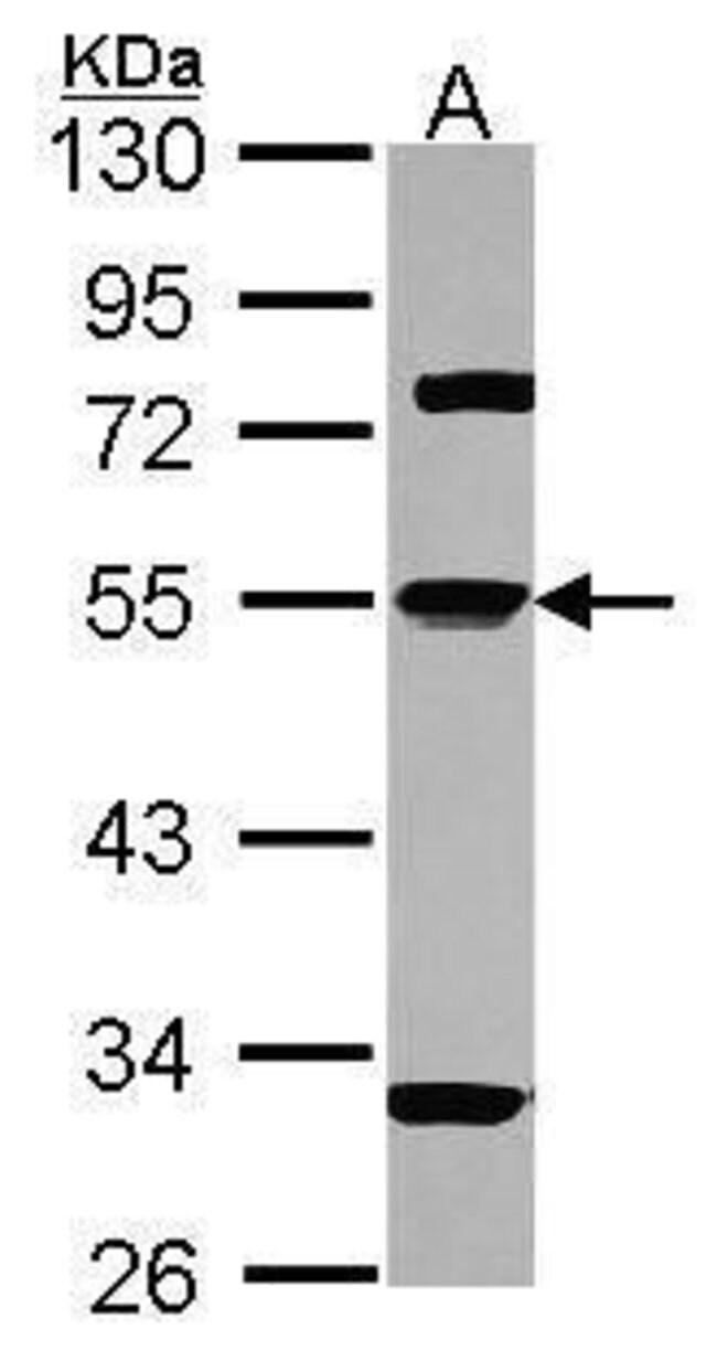 alpha-1 Antitrypsin Rabbit anti-Human, Polyclonal, Invitrogen 100 µL;