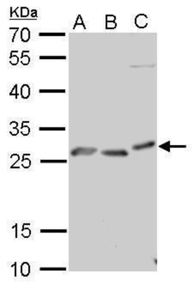 PrP Rabbit anti-Human, Mouse, Polyclonal, Invitrogen 100 µL; Unconjugated