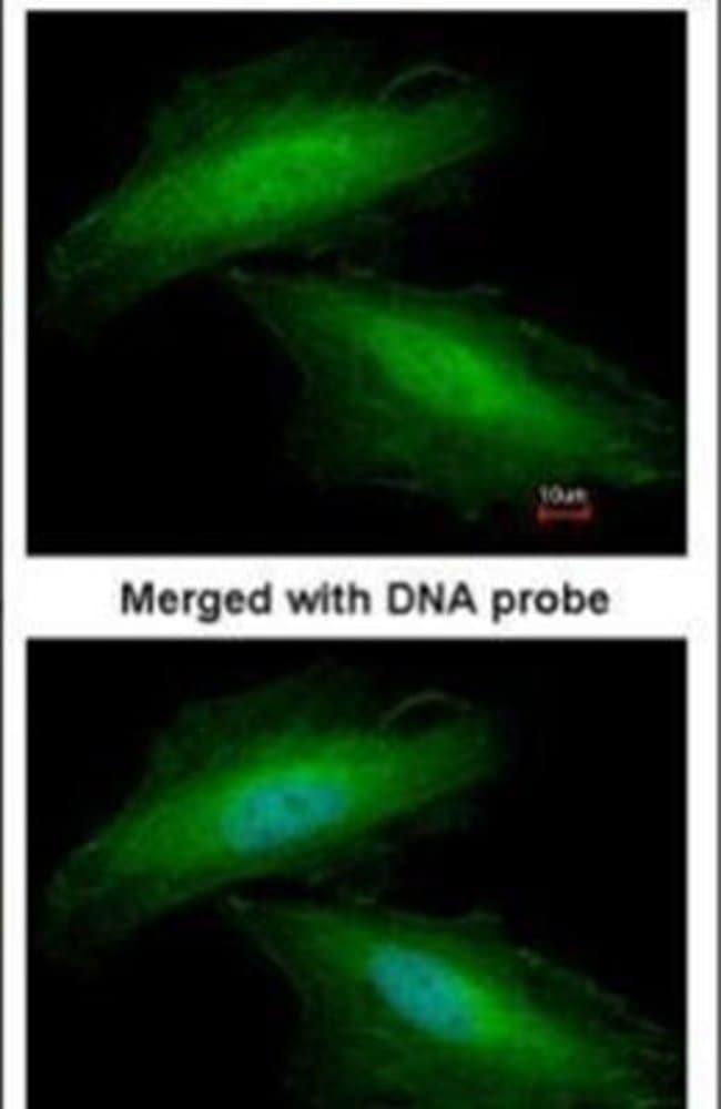 Annexin A1 Rabbit anti-Human, Mouse, Rat, Polyclonal, Invitrogen 100 µL;