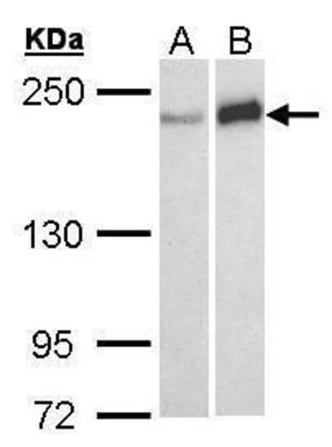 WRN Rabbit anti-Human, Polyclonal, Invitrogen 100 µL; Unconjugated