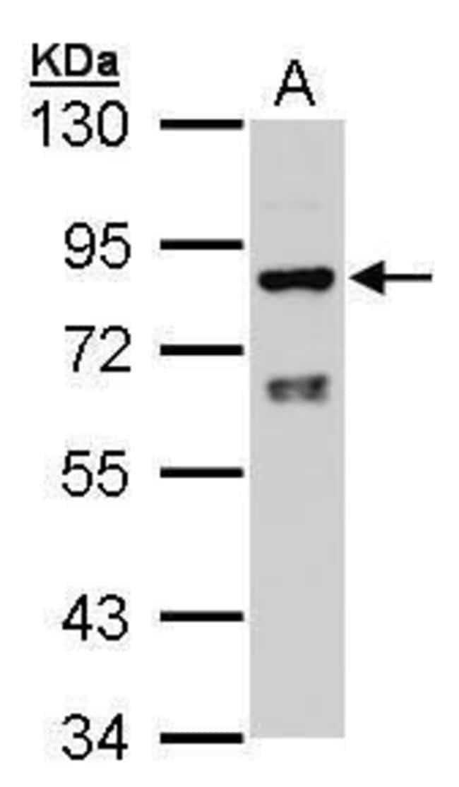 Cytochrome P450 Reductase Rabbit anti-Human, Polyclonal, Invitrogen 100